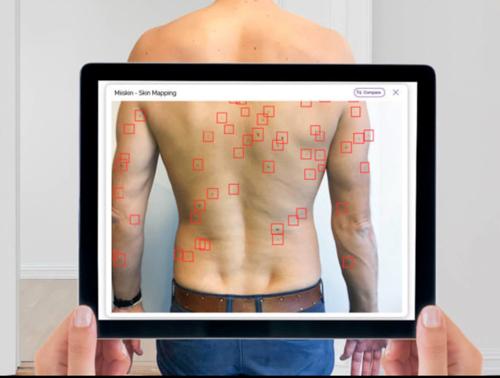 New App Scans Moles - Cancer Watch